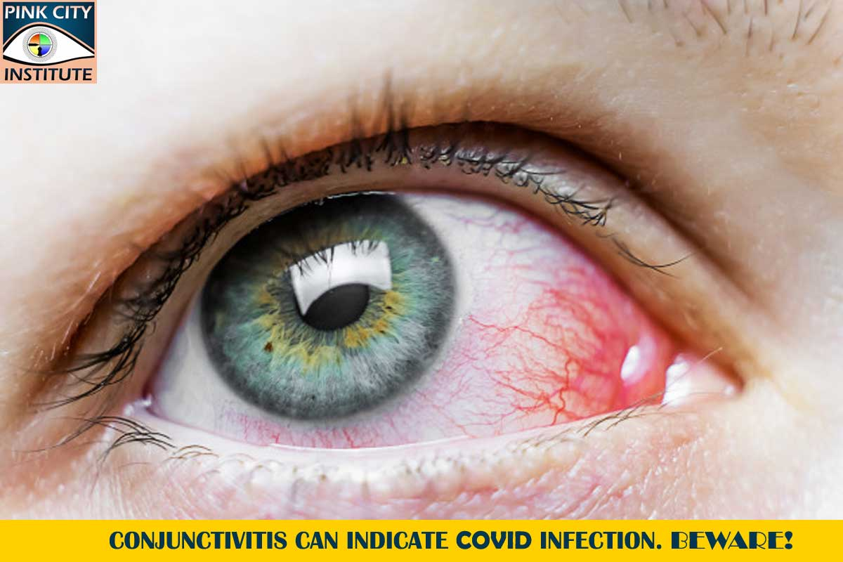 Conjunctivitis can indicate COVID infection. Beware!